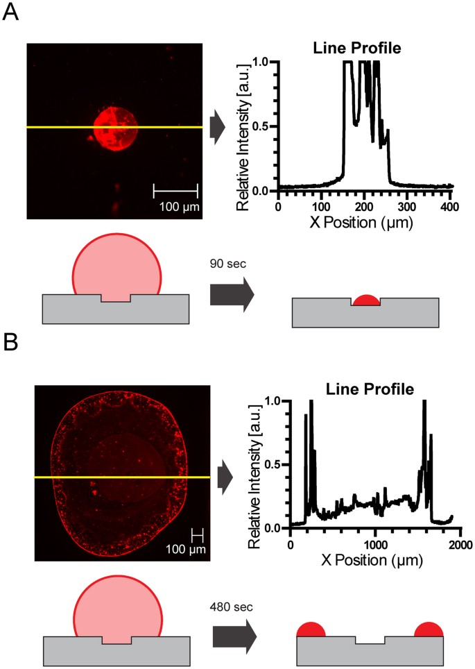 Reversing Coffee-Ring Effect by Laser-Induced Differential