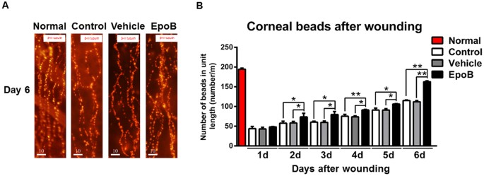 Epothilone B Speeds Corneal Nerve Regrowth and Functional