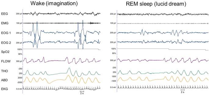 REM sleep respiratory behaviours match mental content in narcoleptic