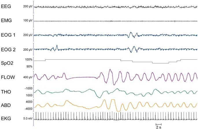 REM sleep respiratory behaviours match mental content in