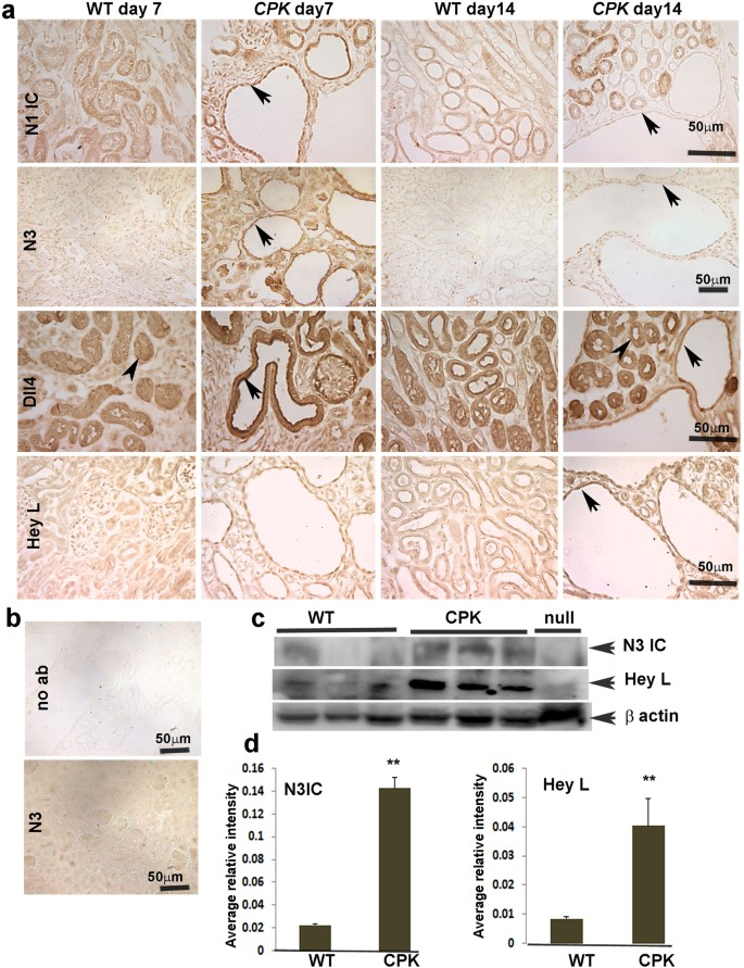 Aberrant Regulation of Notch3 Signaling Pathway in