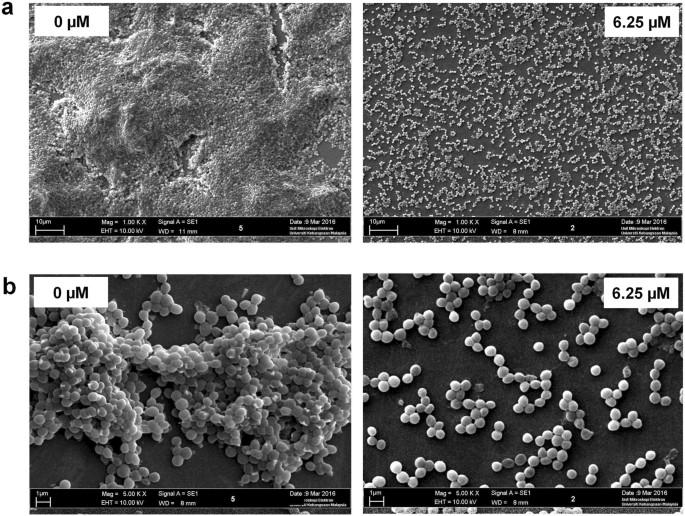 Suppression of Staphylococcus aureus biofilm formation and