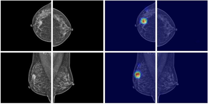 Applying Data-driven Imaging Biomarker in Mammography for Breast