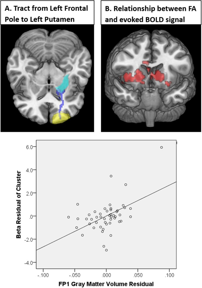 Gray and white matter integrity influence TMS signal propagation: a
