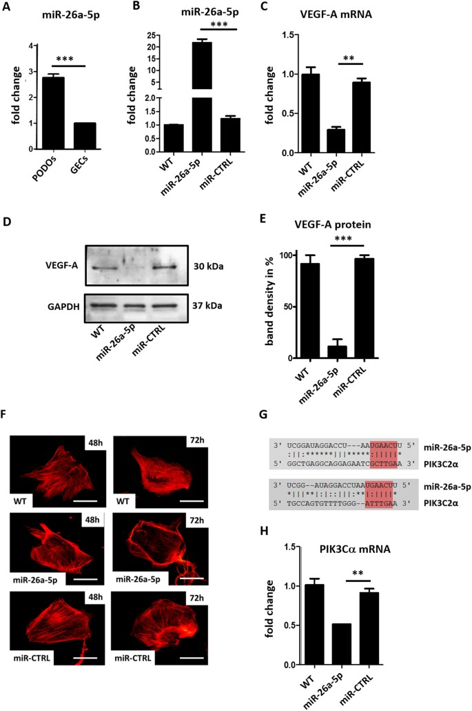 Overexpression of preeclampsia induced microRNA-26a-5p leads