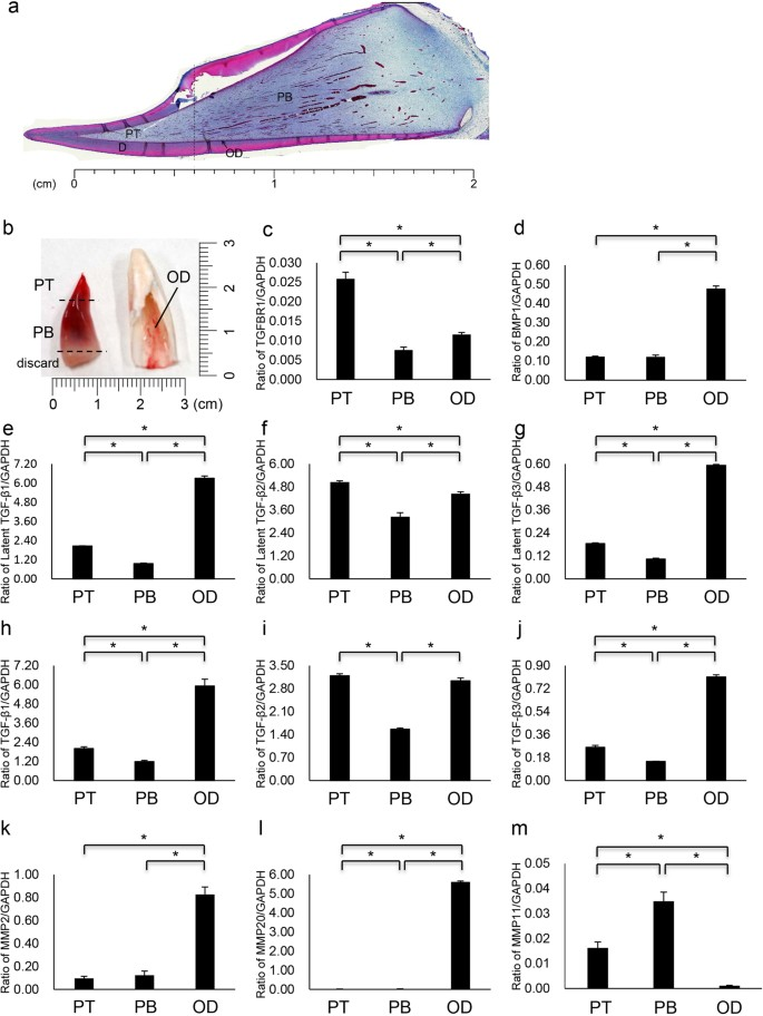 The dynamics of TGF-β in dental pulp, odontoblasts and