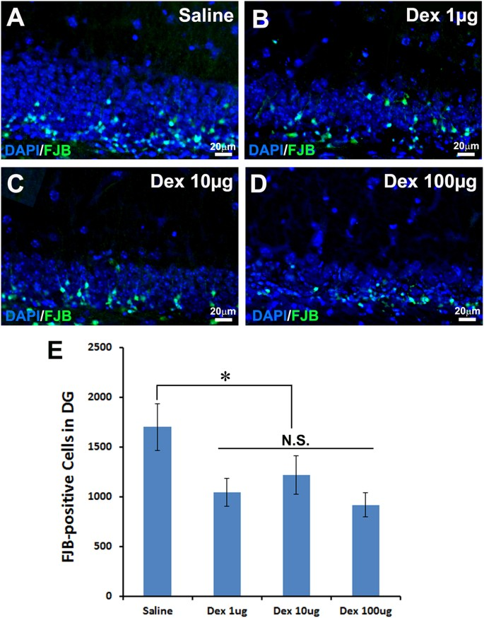 Neuroprotective effect of dexmedetomidine in a murine model of