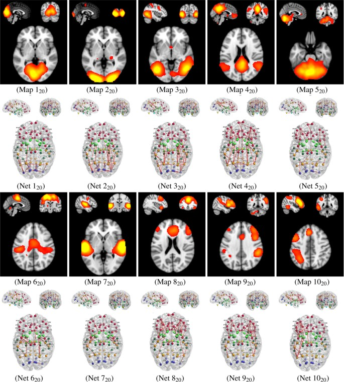 Function-specific and Enhanced Brain Structural Connectivity