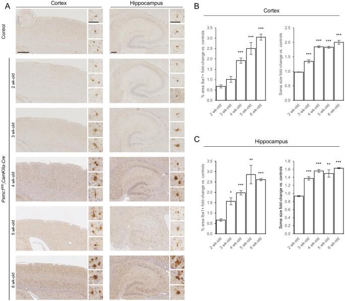 Dynamic metabolic patterns tracking neurodegeneration and