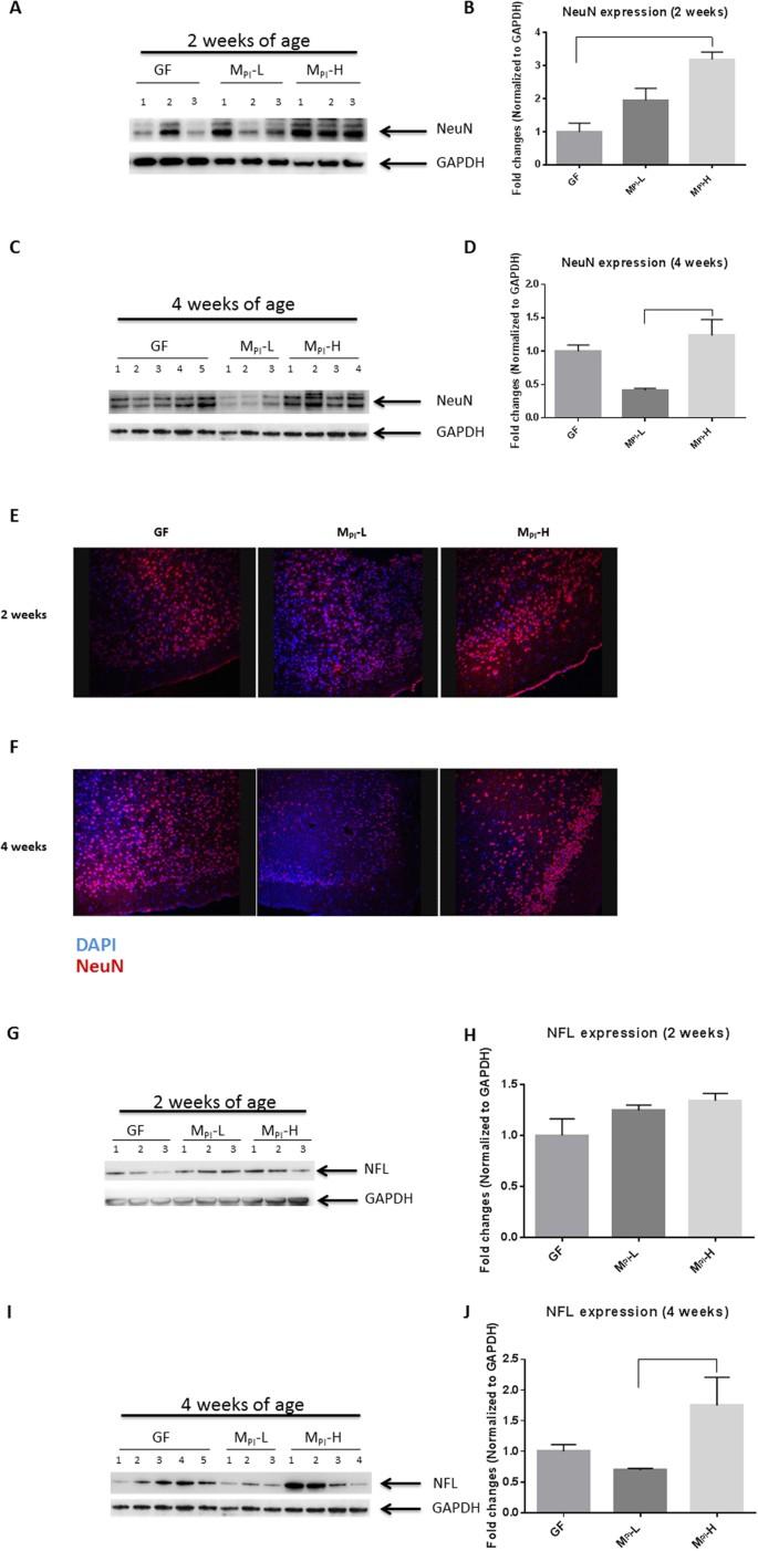 Effects of Intestinal Microbiota on Brain Development in Humanized