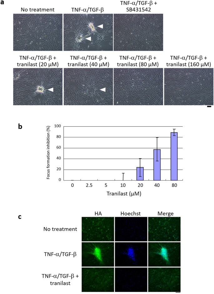 Tranilast inhibits the expression of genes related to epithelial