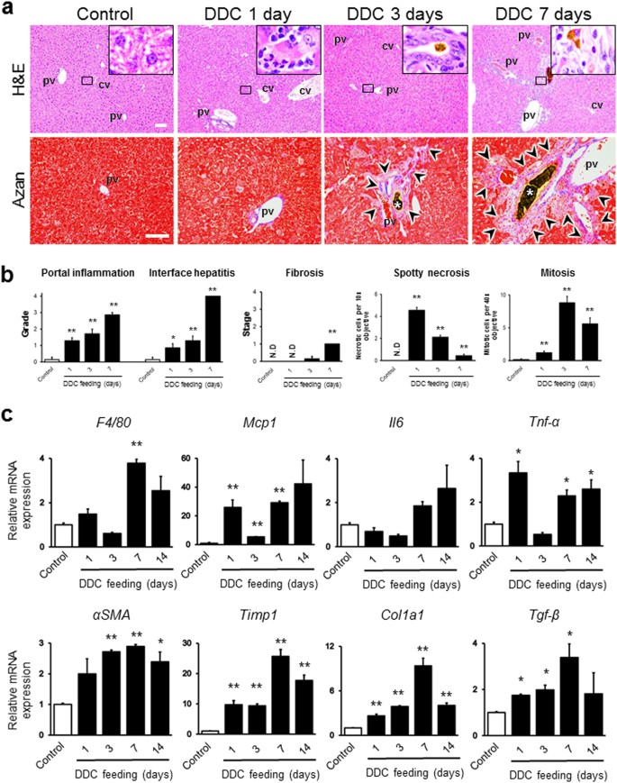 Pivotal roles of Kupffer cells in the progression and