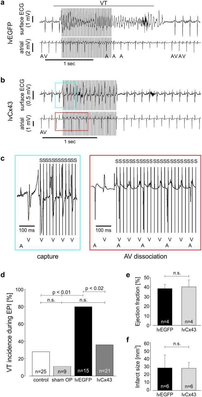 Overexpression of Cx43 in cells of the myocardial scar