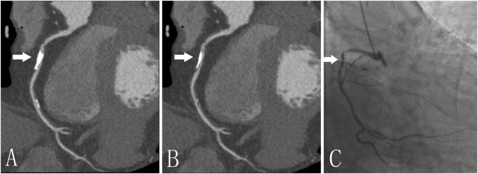 Blooming Artifact Reduction in Coronary Artery Calcification