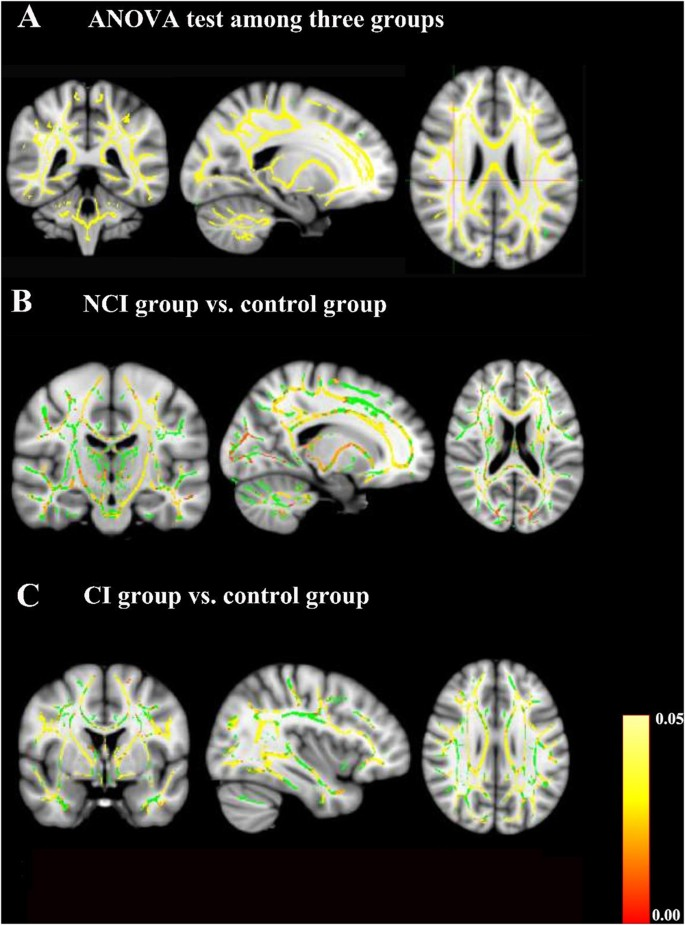 The Relationship Between Cerebral White Matter Integrity And