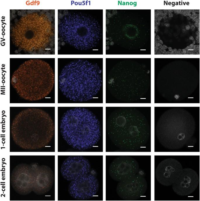 Using Single Molecule mRNA Fluorescent in Situ Hybridization