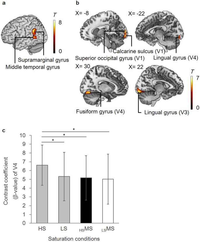 Neuromolecular basis of faded perception associated with