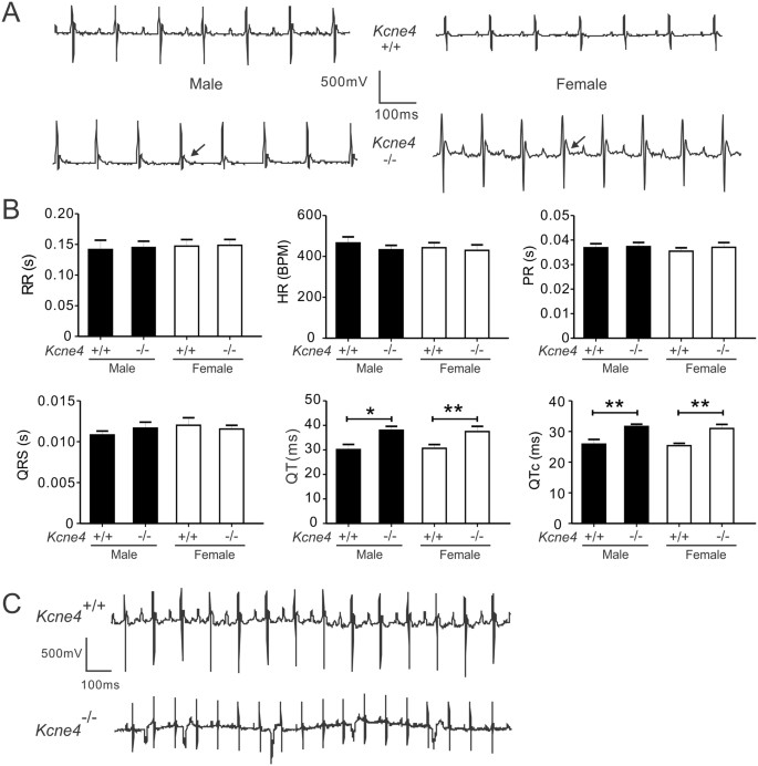 Kcne4 deletion sex-specifically predisposes to cardiac arrhythmia