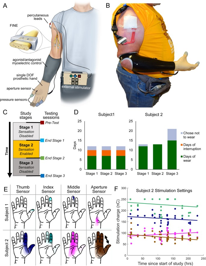 Home Use of a Neural-connected Sensory Prosthesis Provides
