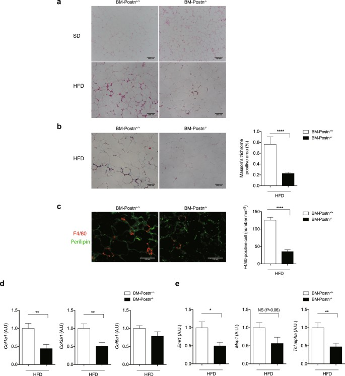 Loss of periostin ameliorates adipose tissue inflammation