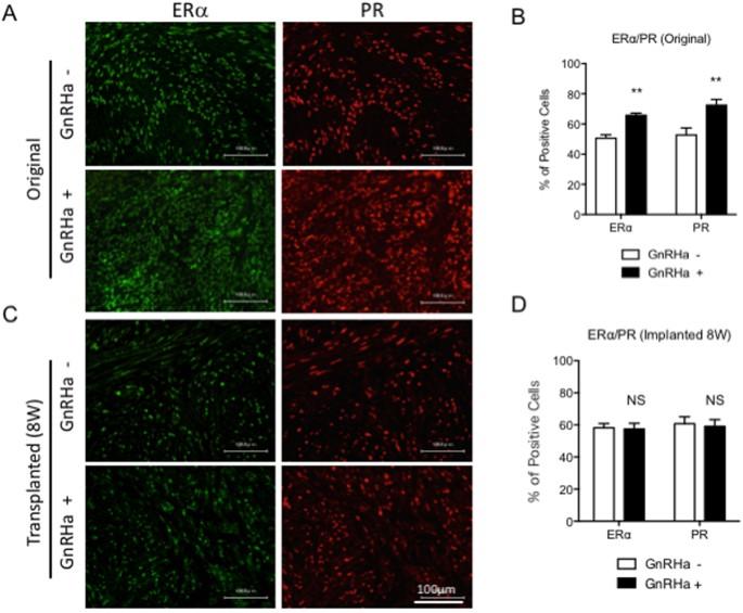 Establishment of a novel mouse xenograft model of human uterine