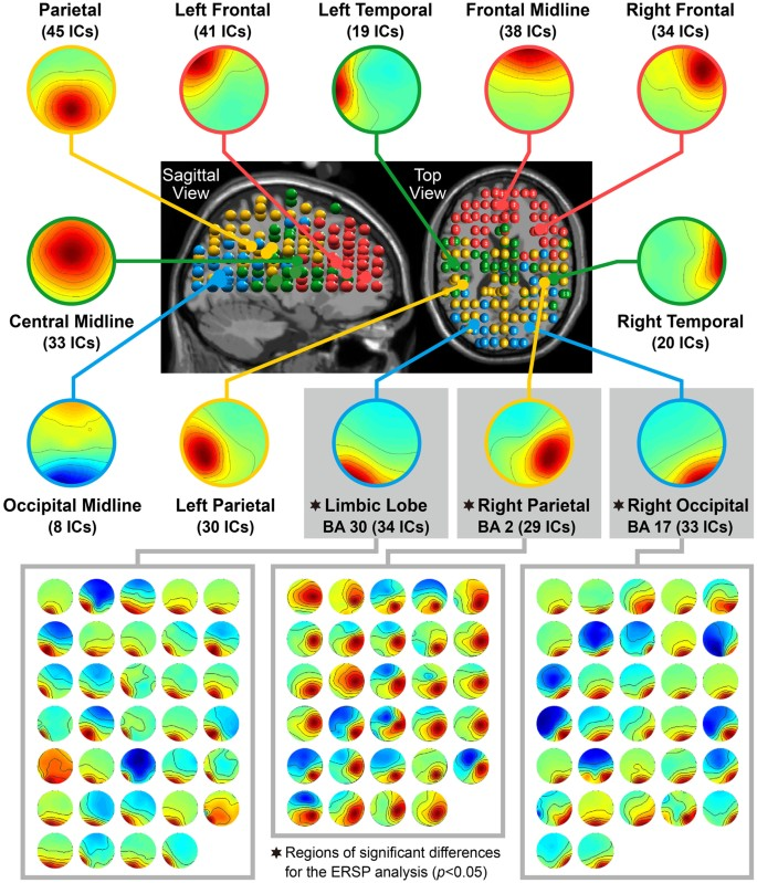 Temporal and spectral EEG dynamics can be indicators of