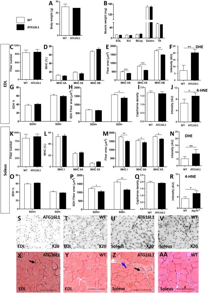 Attenuation of autophagy impacts on muscle fibre development
