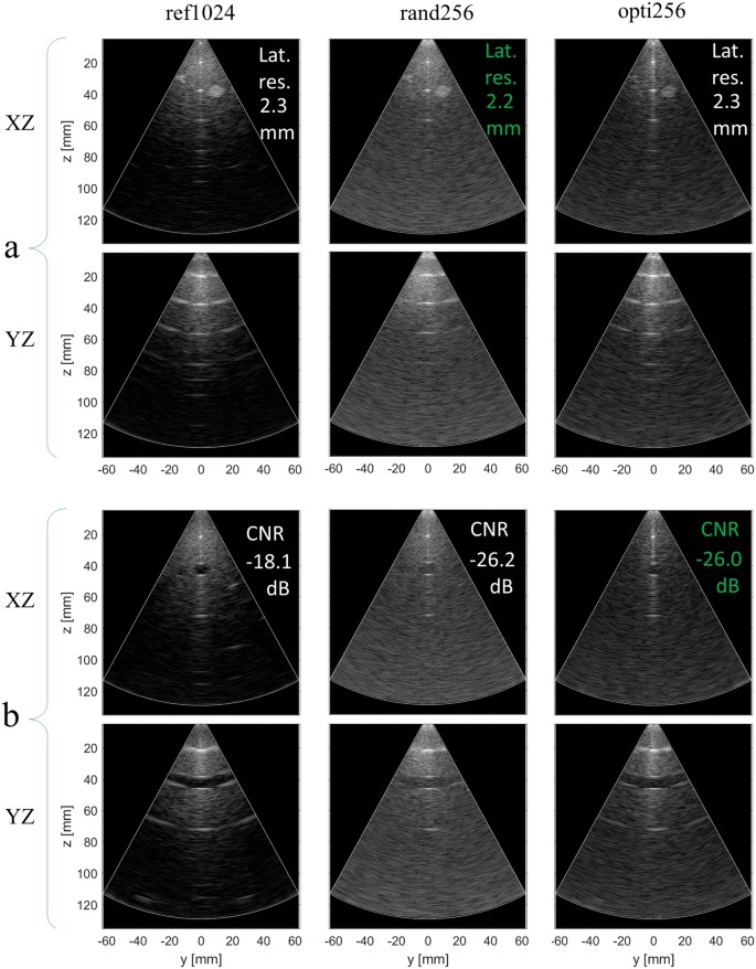 Experimental 3-D Ultrasound Imaging with 2-D Sparse Arrays