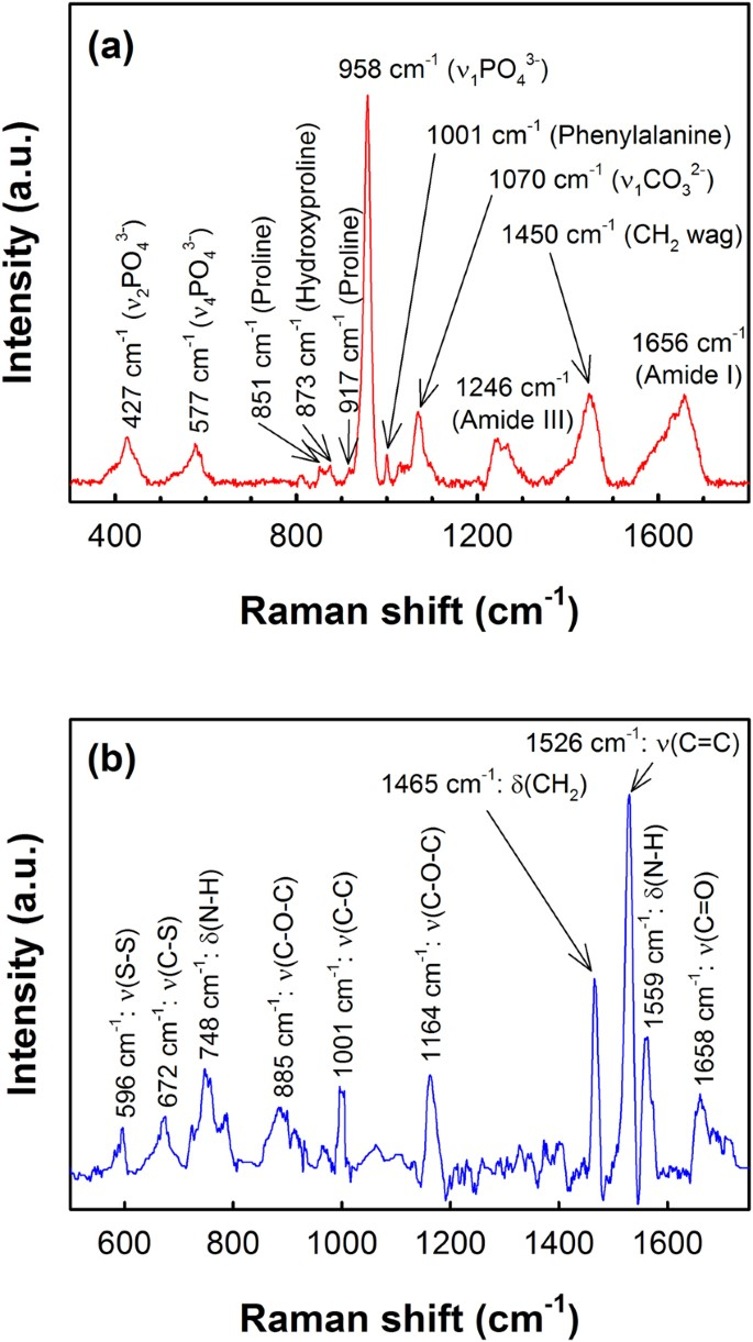 Raman Spectroscopy detects changes in Bone Mineral Quality and