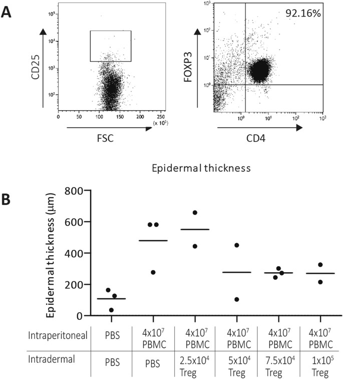 Intradermal injection of low dose human regulatory T cells