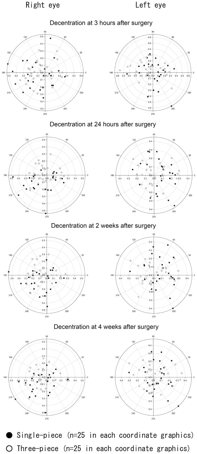 Short-term Dynamics after Single- and Three-piece Acrylic Intraocular Lens  Implantation: A Swept-source Anterior Segment Optical Coherence Tomography  Study   Scientific Reports