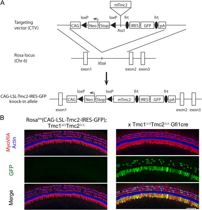 Transgenic Tmc2 expression preserves inner ear hair cells