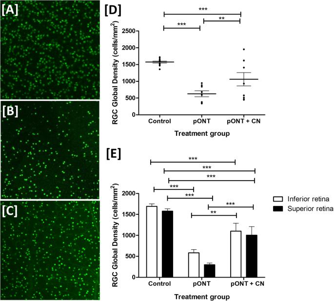 Topical Curcumin Nanocarriers are Neuroprotective in Eye Disease
