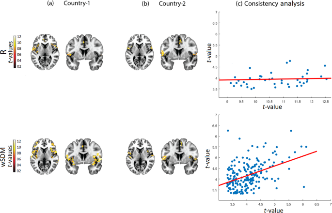 Weighted Symbolic Dependence Metric (wSDM) for fMRI resting