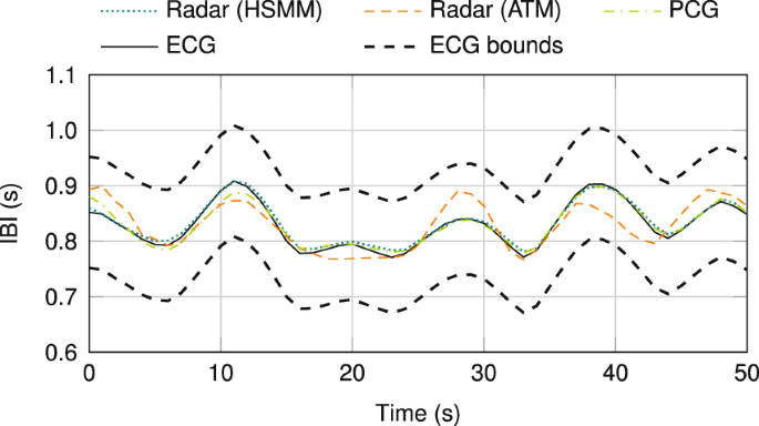 Radar-Based Heart Sound Detection | Scientific Reports
