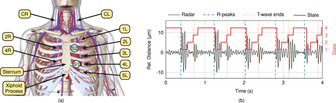 Radar-Based Heart Sound Detection | Scientific Reports