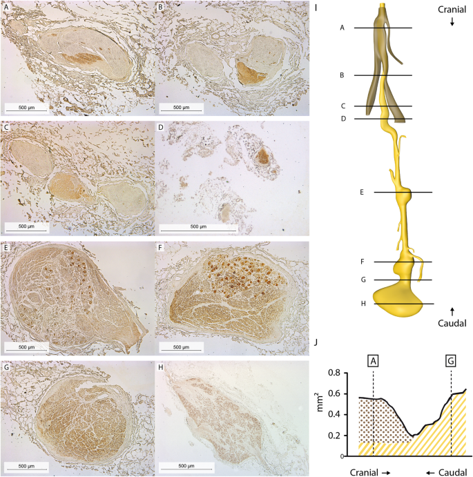 The human phrenic nerve serves as a morphological conduit