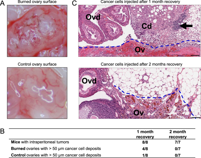 Inflammation Is A Key Contributor To Ovarian Cancer Cell Seeding Scientific Reports
