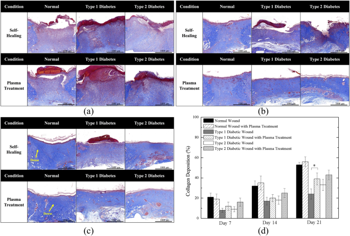 Wound Healing in Streptozotocin-Induced Diabetic Rats Using