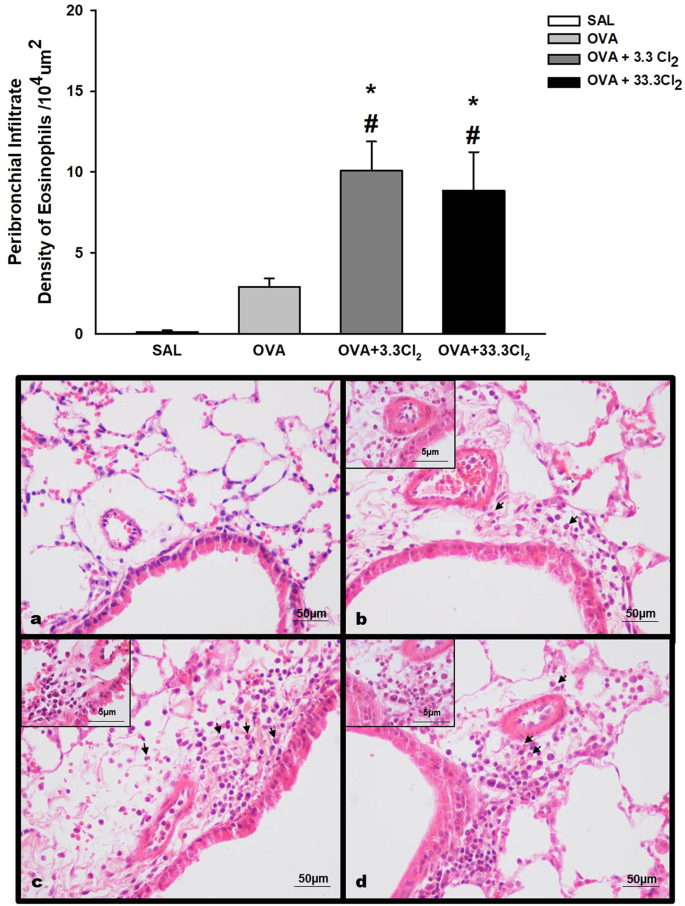 Low dose of chlorine exposure exacerbates nasal and