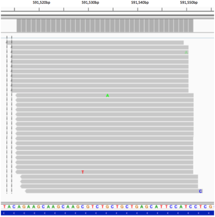 Unique Molecular Identifiers reveal a novel sequencing artefact with
