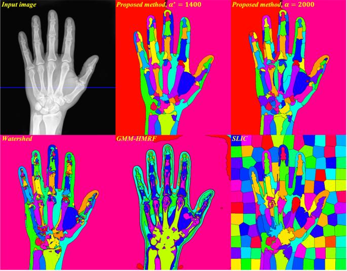 Unsupervised Medical Image Segmentation Based on the Local Center of