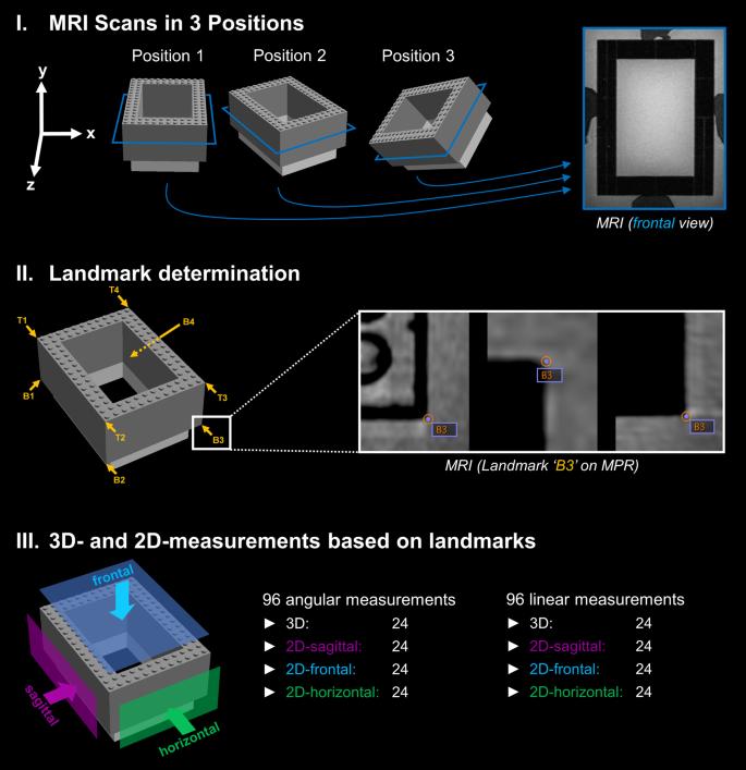 3D cephalometric analysis using Magnetic Resonance Imaging