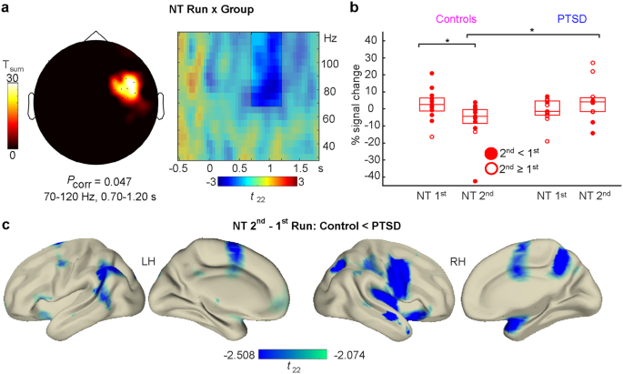 The neural dynamics of deficient memory control in heavily