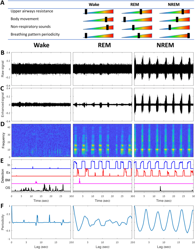 Sleep staging using nocturnal sound analysis | Scientific