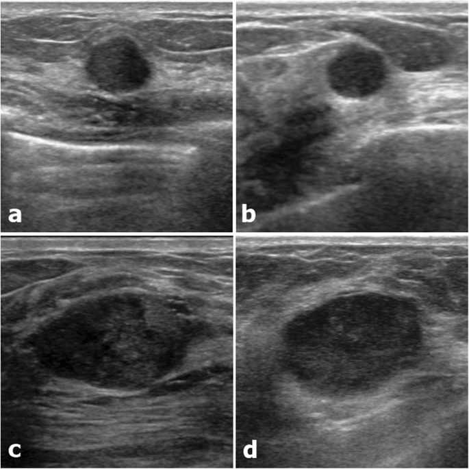 Radiomics Of Us Texture Features In Differential Diagnosis Between