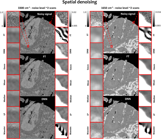 Comparison of spectral and spatial denoising techniques in the