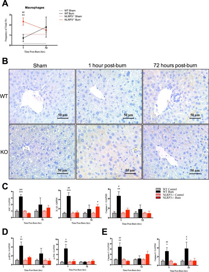 NLRP3 Inflammasome Modulates Post-Burn Lipolysis and Hepatic Fat