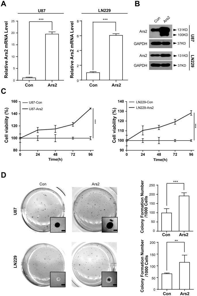 Ars2 promotes cell proliferation and tumorigenicity in glioblastoma on