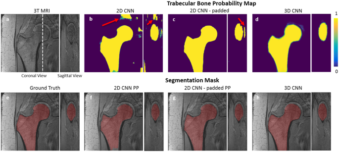 Segmentation of the Proximal Femur from MR Images using Deep